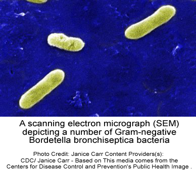 A scanning electron micrograph (SEM) depicting a number of Gram-negative Bordetella bronchiseptica bacteria